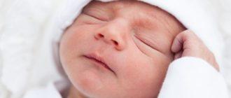 Новорожденный ребенок с акне