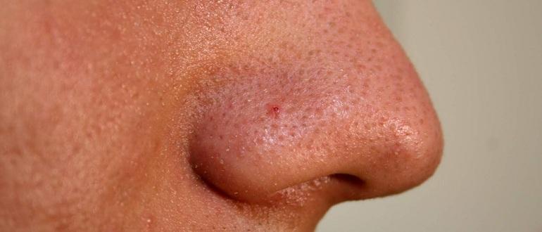Акне на носу