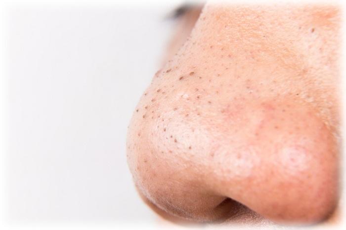 Фото акне на носу