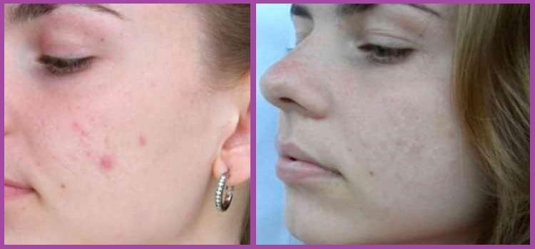 Фото результата от применения борной кислоты для лица
